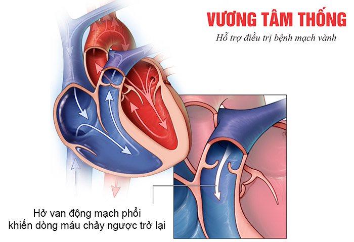 Hở van động mạch phổi – Bệnh van tim nguy hiểm không thể xem thường